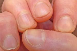 03-fingernails